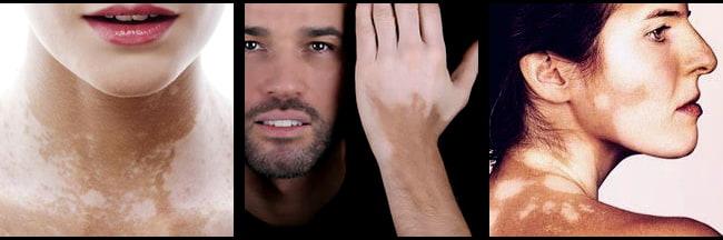 Vitiligo Skin Disease Causes Symptoms Treatments Premier Clinic