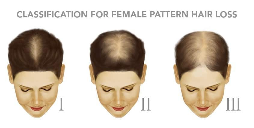 Woman-hair-loss-Classification
