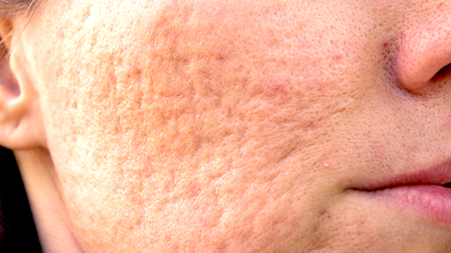 how_to_get_rid_of_acne_scars