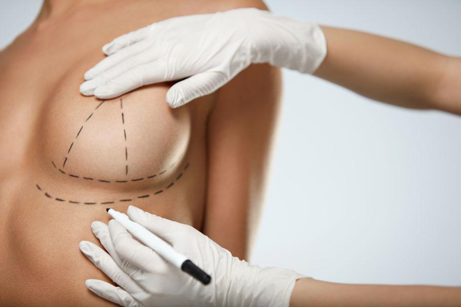 breast-lift-botox
