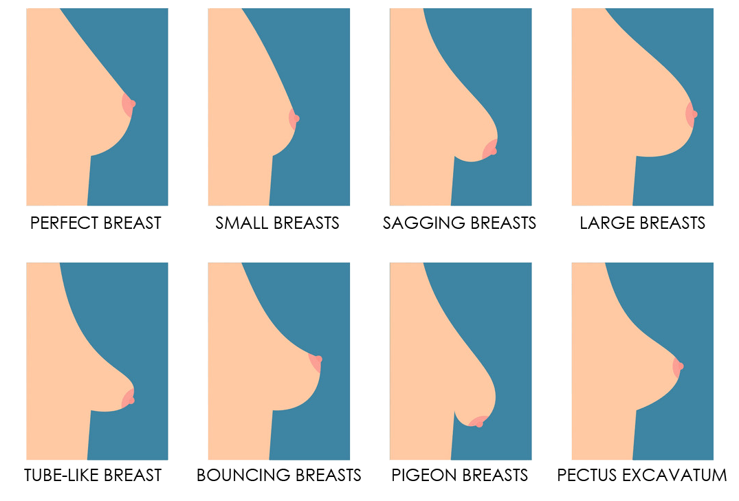 breast shape