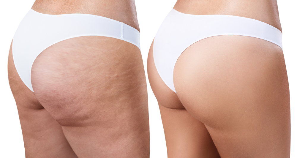 The mesolipo treatment will target localised fat deposits and cellulite