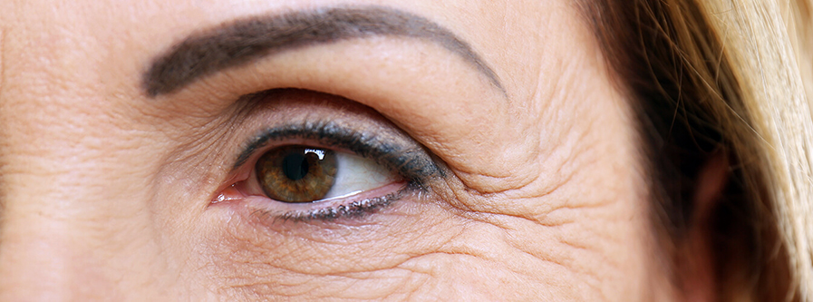How To Reduce Wrinkles On Your Face