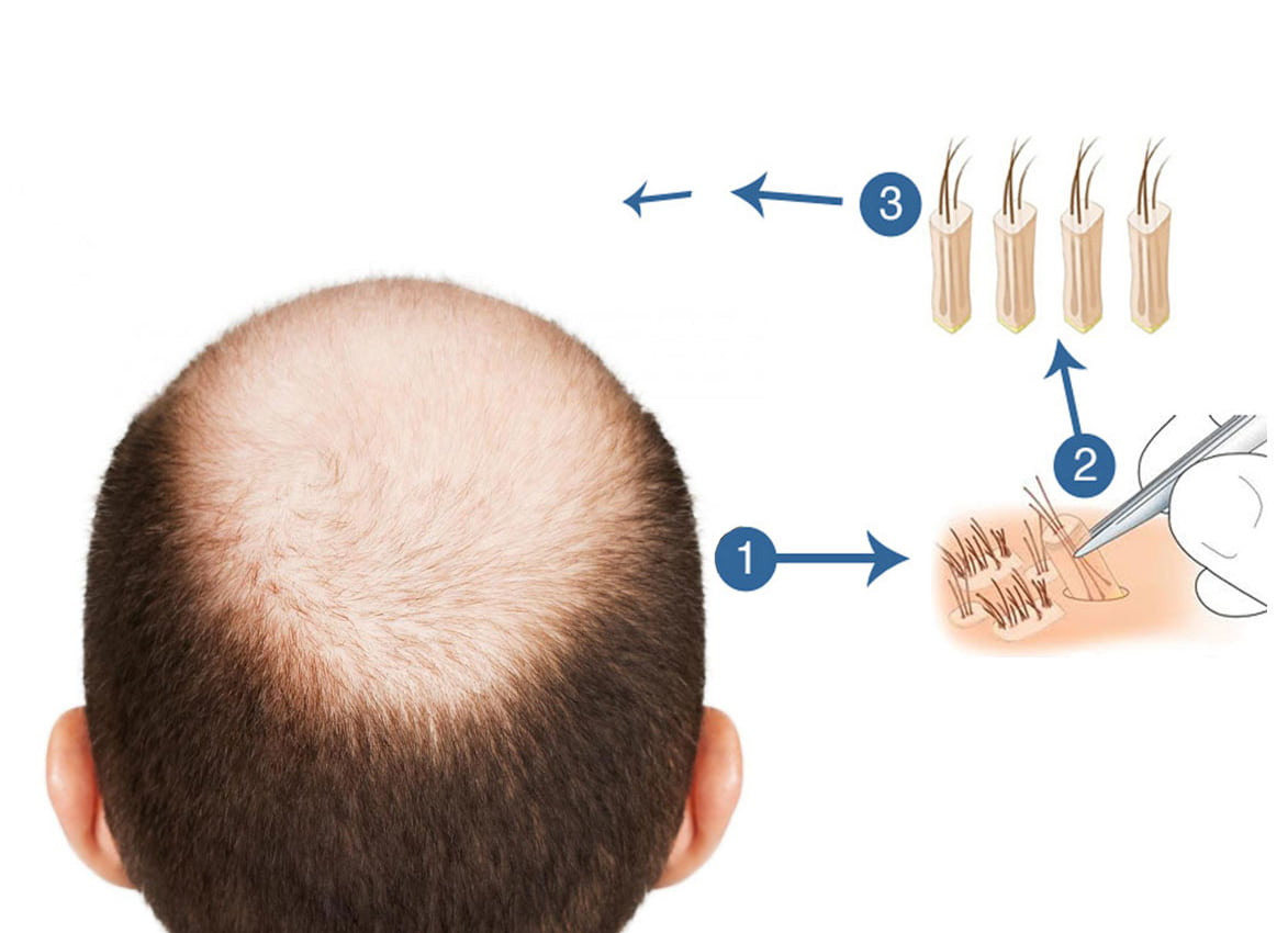 Premier Clinic performs FUE Hair Transplant
