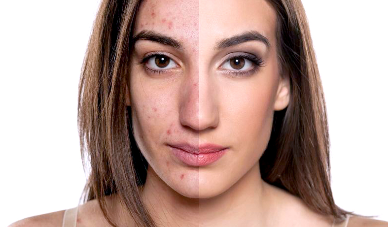 how_to_get_rid_of_acne_scars_1024x1024