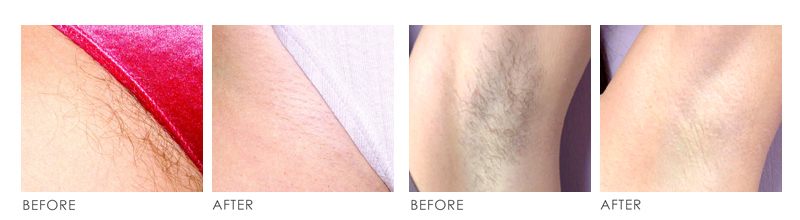 laser hair removal Before After 01