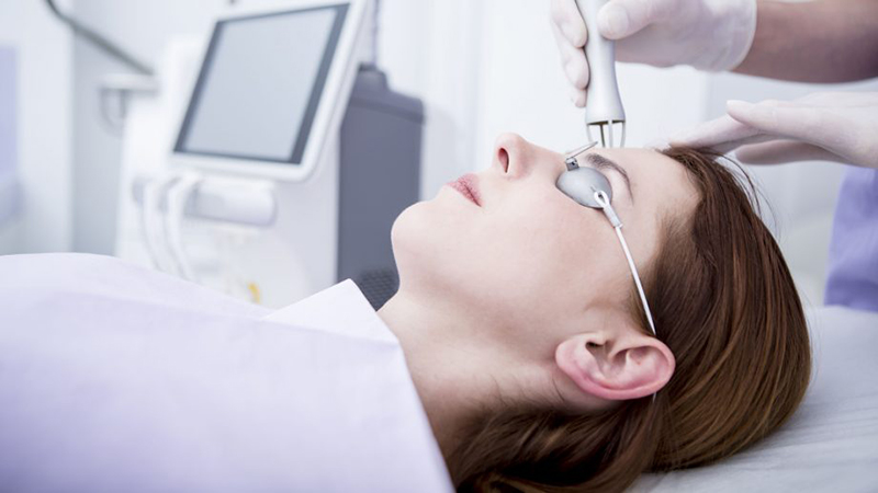 Get Laser Treatment For Acne Scars