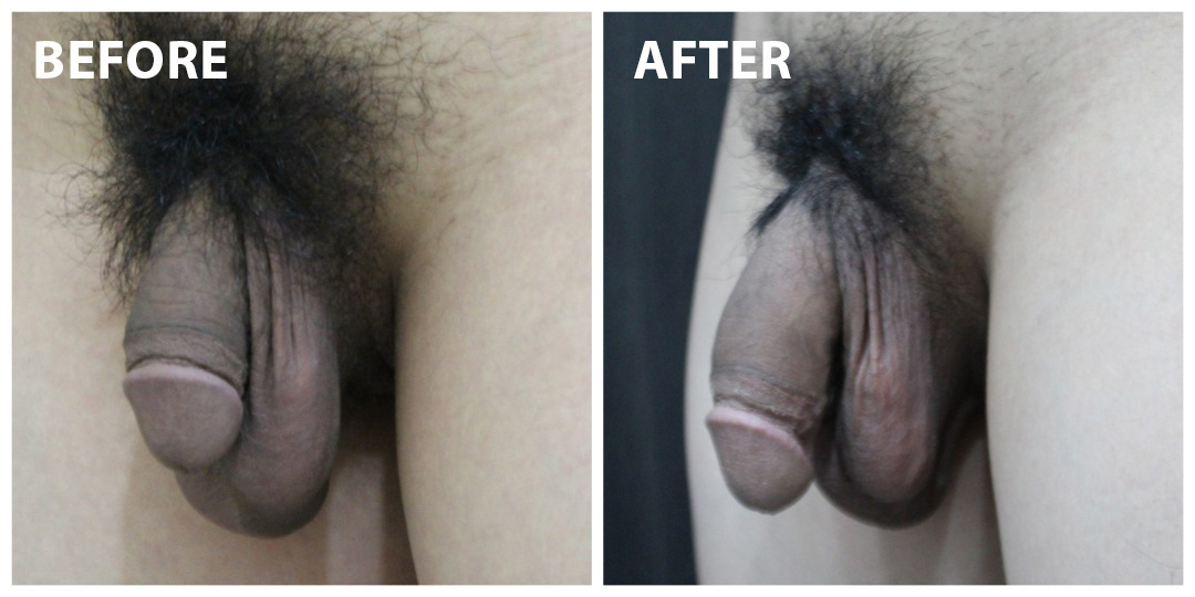 Penis Enlargement Before & After KL