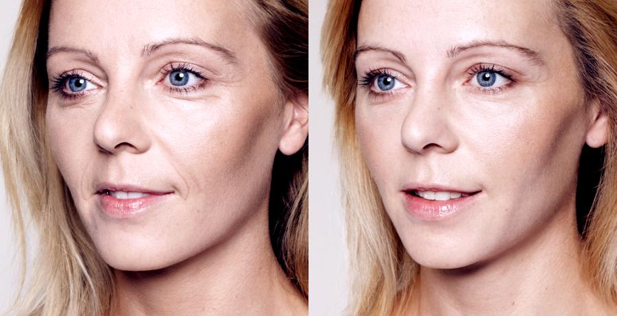 Reduce Wrinkles & Fine Lines with Radiesse Filller