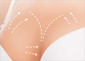 BENEFITS OF BREAST AUGMENTATION