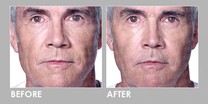 Before & After Radiessse Filler Injection
