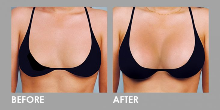Before & After Breast Augmentation & Enlargement