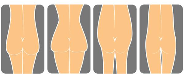 Buttock filler
