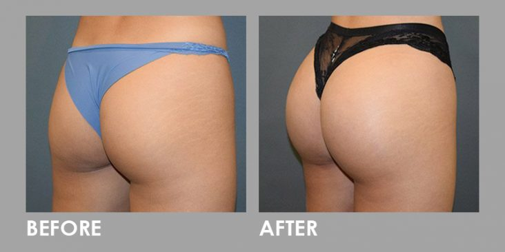 Before & After Buttock Injection Augmentation Procedure