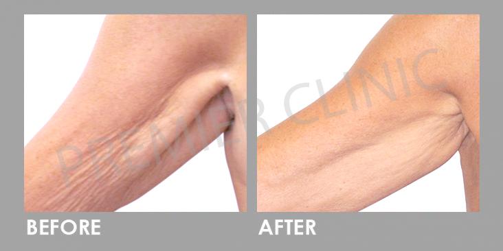 CANDELA-Before-After