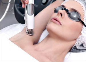 CANDELA GENTLE YAG LASER TREATMENT 08