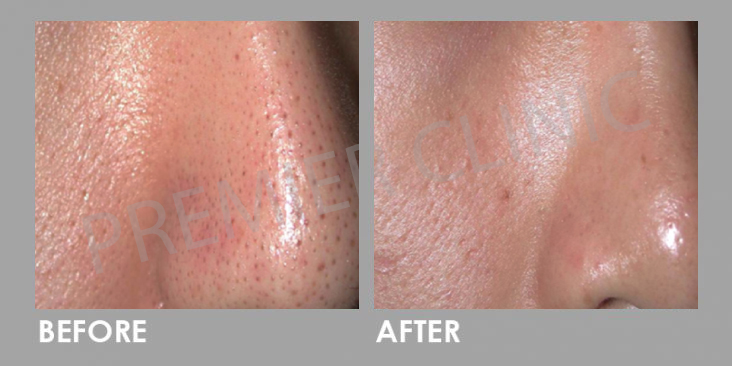 Before & After Carbon Laser Peel Treatment
