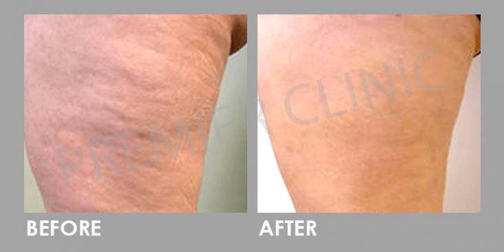 Cellulite-removal-Before-After