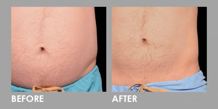 Before & After Clatuu Fat Freezing Treatment
