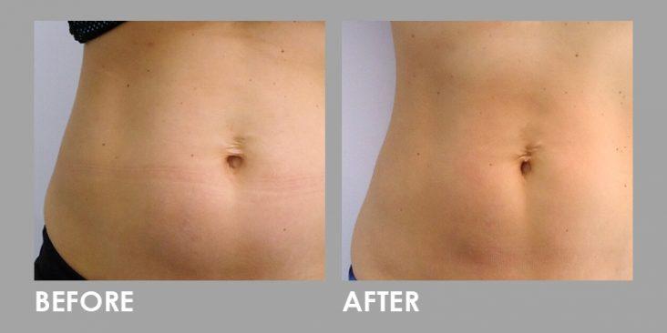 Before & After Clatuu Fat Freezing Treatment