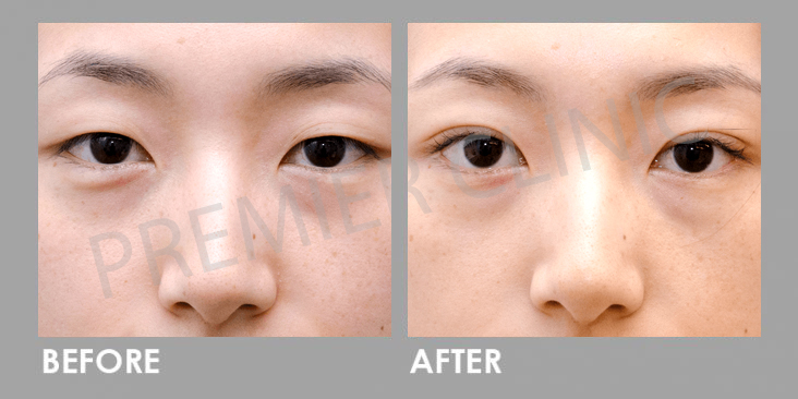 Before & After Double Eyelid Stitching