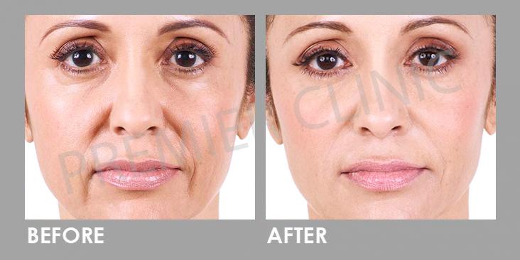 Before & After Dermal Filler Treatment