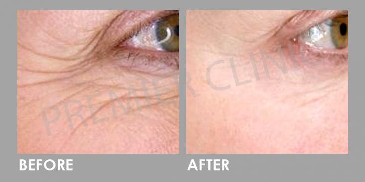Wrinkle Removal Laser Before & After
