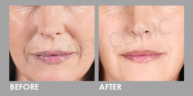 Before & After Sculptra