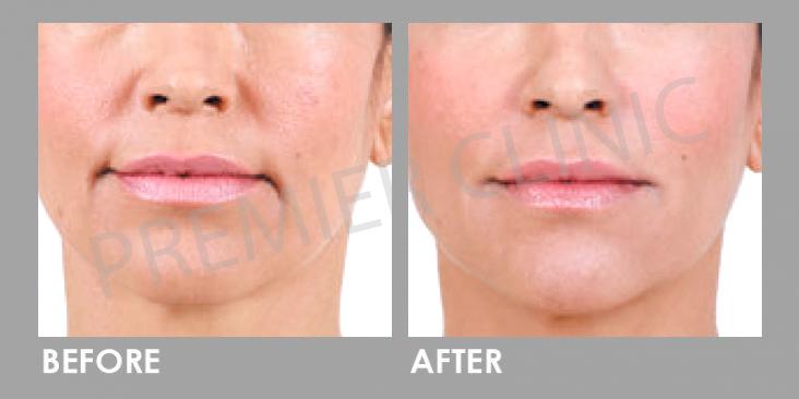 Before & After Sculptra Derma Veil