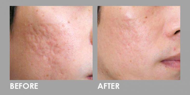 Before & After Dermaroller (Microneedling)