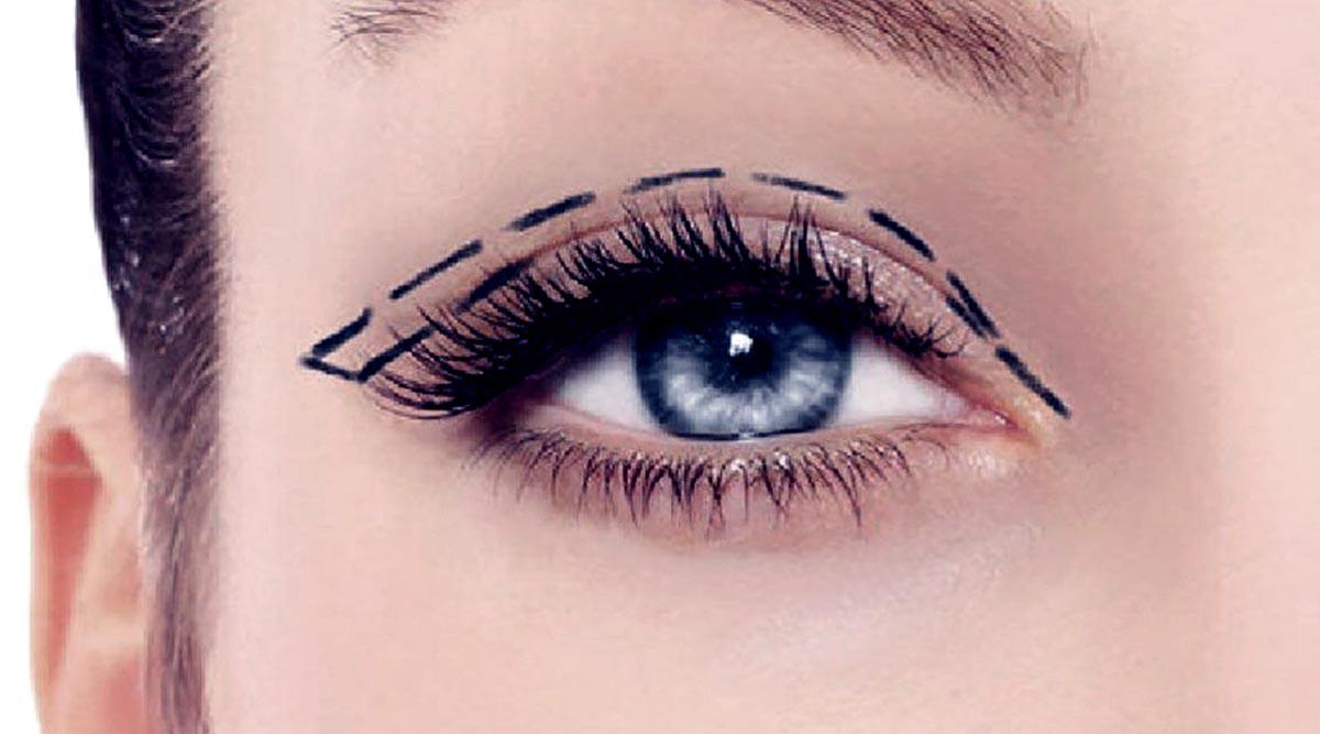 Double Eyelid Non-Invasive Surgery