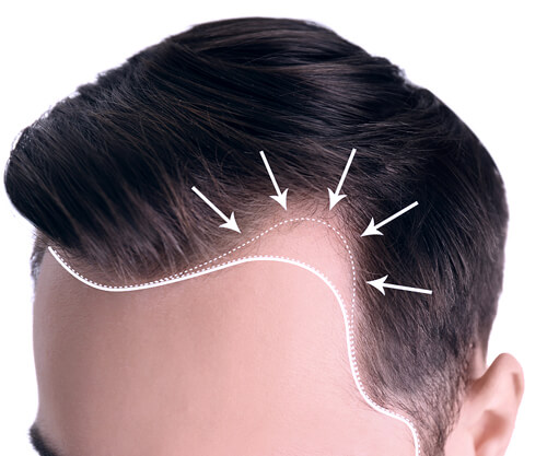 PREMIER CLINIC HAIR LOSS TREATMENTS
