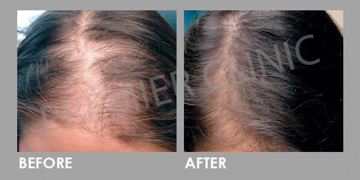 Before & After FUE Hair Transplant for Hair Loss