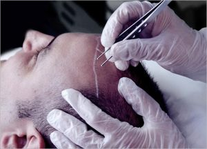 FUE Hair Transplant for Hair Loss