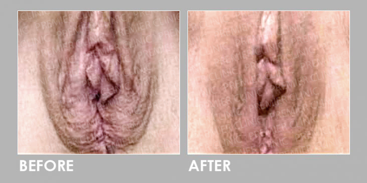 Filler Injections for Vaginal Rejuvenation