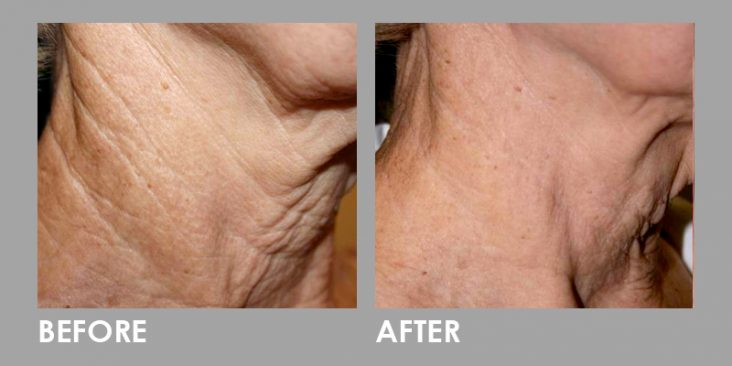 Before & After Fractional CO2 Laser Treatment
