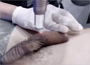 Genital Skin Whitening for Men