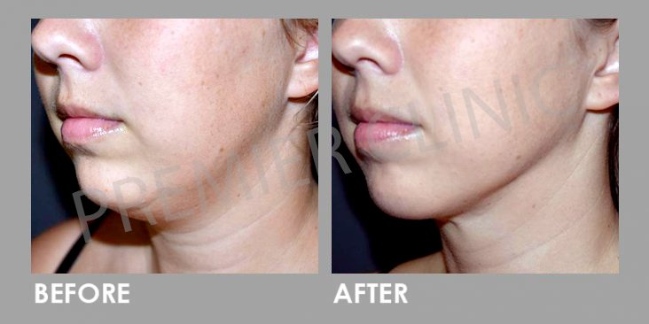Before & After HIFU Skin Lifting Treatment