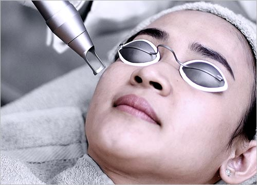 BENEFITS OF PICO LASER