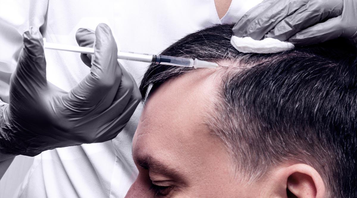 HAIR FILLER GEL – HAIR TREATMENT