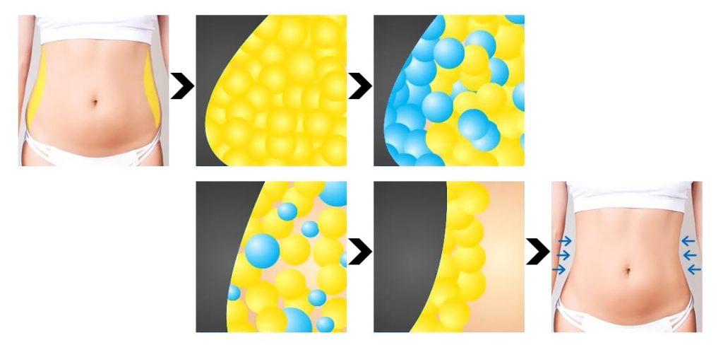 How Does the Clatuu Fat Freezing Treatment Work 03