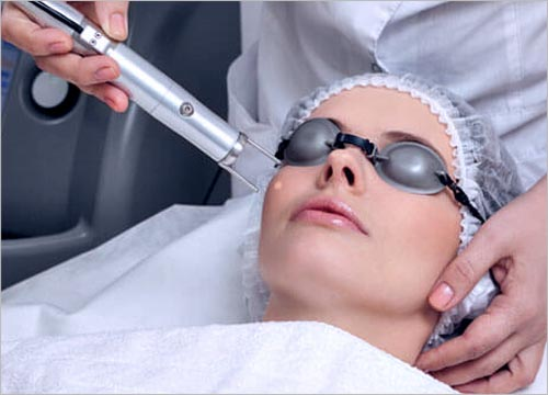 How Does the Fractional CO2 Laser Work