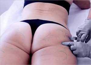 How does the Buttocks Augmentation work