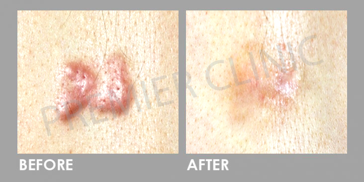 Before Keloid Scar Treatment & Removal