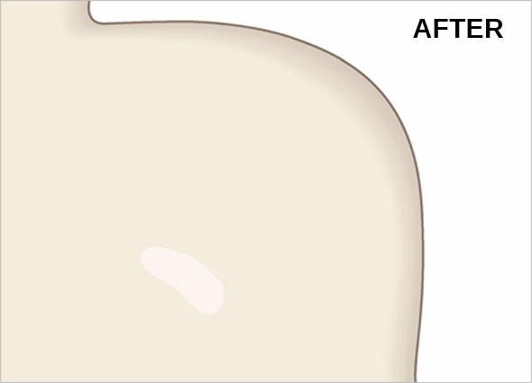 Keloid Scar Treatment & Removal