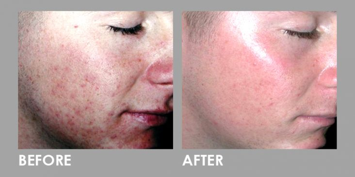 Before & After LED Photomodulation Therapy