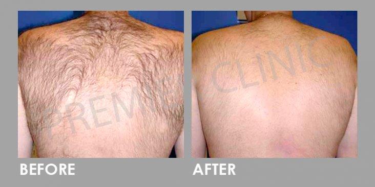 Before & After Candela Gentle YAG Laser Treatment