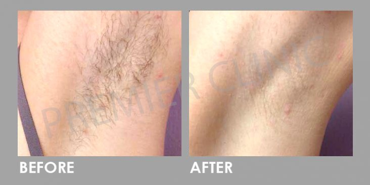 Before & After Candela Gentle YAG Laser Treatment