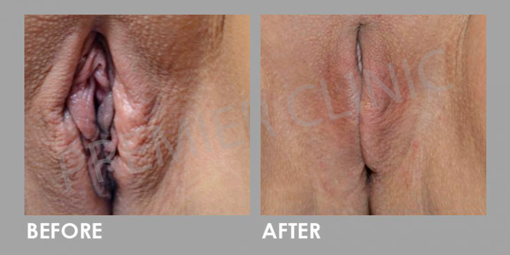 Laser-Vaginal-Rejuvenation