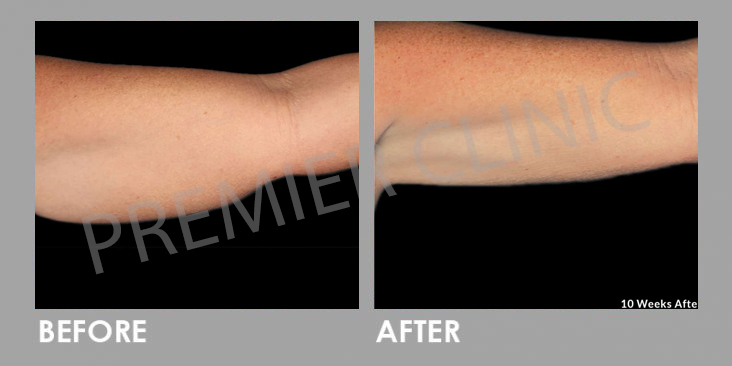 Before & After Le Shape: Weight Loss Body Slimming